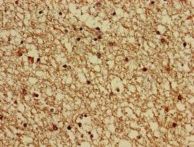 Immunohistochemistry (Formalin/PFA-fixed paraffin-embedded sections) - Anti-G protein alpha S antibody (ab235956)