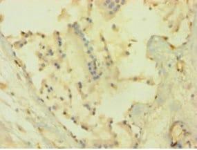 Immunohistochemistry (Formalin/PFA-fixed paraffin-embedded sections) - Anti-AKT1 antibody (ab235958)