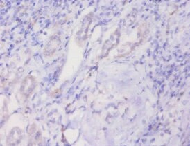 Immunohistochemistry (Formalin/PFA-fixed paraffin-embedded sections) - Anti-Prohibitin antibody (ab235962)