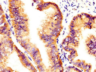 Immunohistochemistry (Formalin/PFA-fixed paraffin-embedded sections) - Anti-Axl antibody (ab235964)