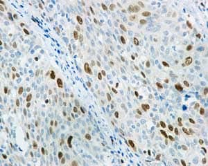 Immunohistochemistry (Formalin/PFA-fixed paraffin-embedded sections) - Anti-KIFC1 antibody [11445] - BSA and Azide free (ab235994)