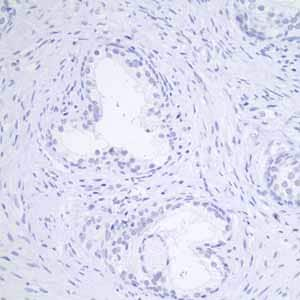 Immunohistochemistry (Formalin/PFA-fixed paraffin-embedded sections) - Anti-GCDFP 15 antibody [EP1582Y] - BSA and Azide free (ab235998)