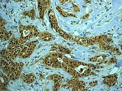 Immunohistochemistry (Formalin/PFA-fixed paraffin-embedded sections) - Anti-PKC zeta (phospho T560) antibody [EP2037AY] - BSA and Azide free (ab236001)
