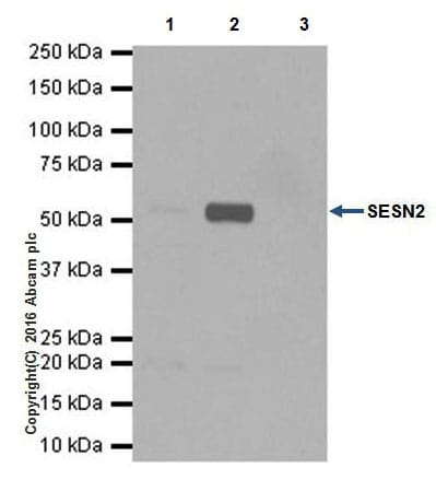 Immunoprecipitation - Anti-SESN2/Sestrin-2 antibody [EPR18907] - BSA and Azide free (ab236025)