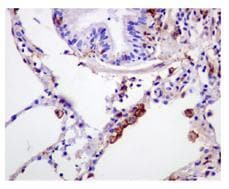 Immunohistochemistry (Formalin/PFA-fixed paraffin-embedded sections) - Anti-Gelsolin antibody [EPR1942] - BSA and Azide free (ab236029)