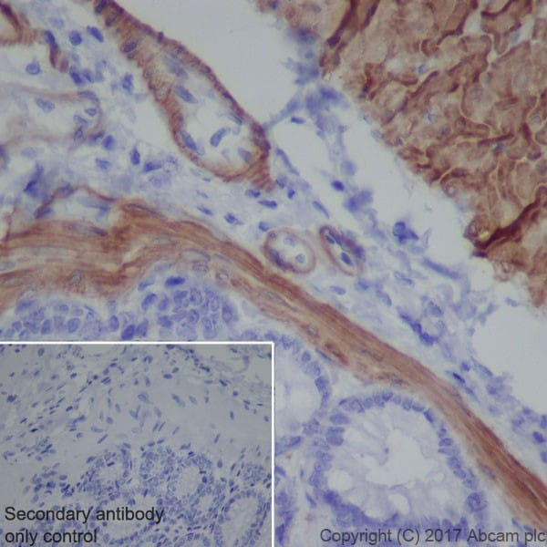 Immunohistochemistry (Formalin/PFA-fixed paraffin-embedded sections) - Anti-Smoothelin antibody [EPR20044] - BSA and Azide free (ab236034)