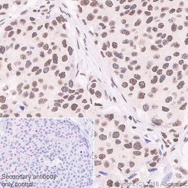 Immunohistochemistry (Formalin/PFA-fixed paraffin-embedded sections) - Anti-RPA32/RPA2 antibody [EPR2877Y] - BSA and Azide free (ab236044)