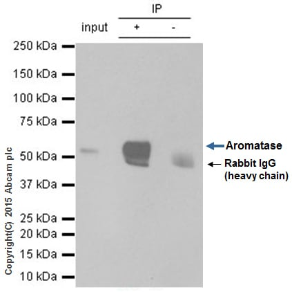 Immunoprecipitation - Anti-Aromatase antibody [EPR4534(2)] - BSA and Azide free (ab236052)