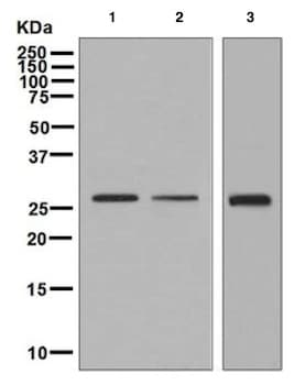 Western blot - Anti-KGF antibody [EPR7261] - BSA and Azide free (ab236065)