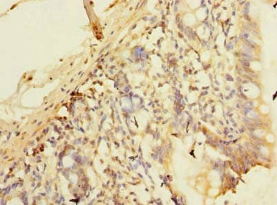 Immunohistochemistry (Formalin/PFA-fixed paraffin-embedded sections) - Anti-C10orf81 antibody (ab236082)