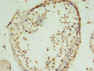 Immunohistochemistry (Formalin/PFA-fixed paraffin-embedded sections) - Anti-FSCB antibody (ab236090)