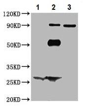 Immunoprecipitation - Anti-ARHGEF7 antibody (ab236103)