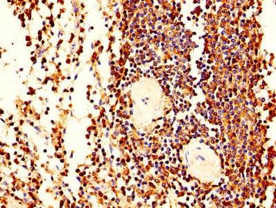 Immunohistochemistry (Formalin/PFA-fixed paraffin-embedded sections) - Anti-Plastin L antibody (ab236104)