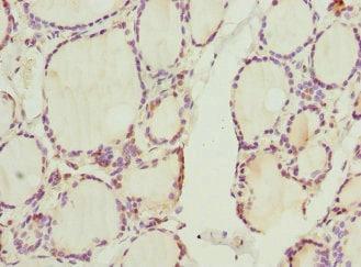 Immunohistochemistry (Formalin/PFA-fixed paraffin-embedded sections) - Anti-Cyclin E2 antibody (ab236106)