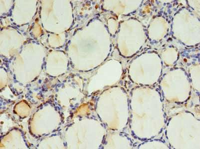 Immunohistochemistry (Formalin/PFA-fixed paraffin-embedded sections) - Anti-KIAA0494 antibody (ab236107)