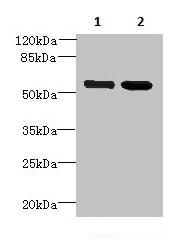 Western blot - Anti-KIAA0494 antibody (ab236107)
