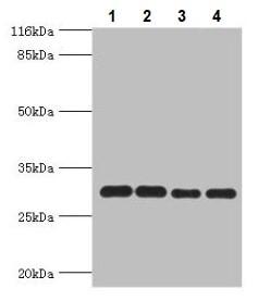 Western blot - Anti-PMM1 antibody (ab236109)