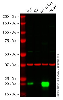 Western blot - Anti-MYL9 antibody [EPR13012(2)] - BSA and Azide free (ab236126)