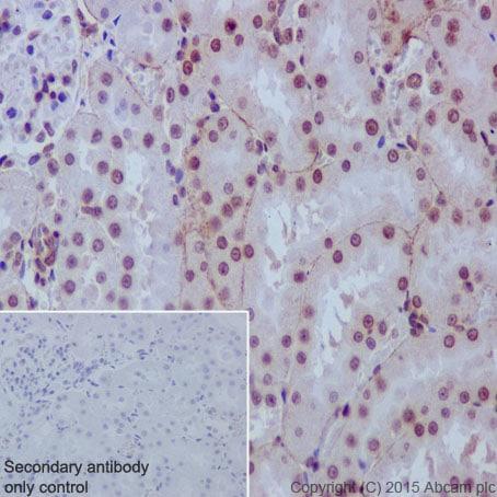 Immunohistochemistry (Formalin/PFA-fixed paraffin-embedded sections) - Anti-Rad51D antibody [EPR16205] - BSA and Azide free (ab236144)