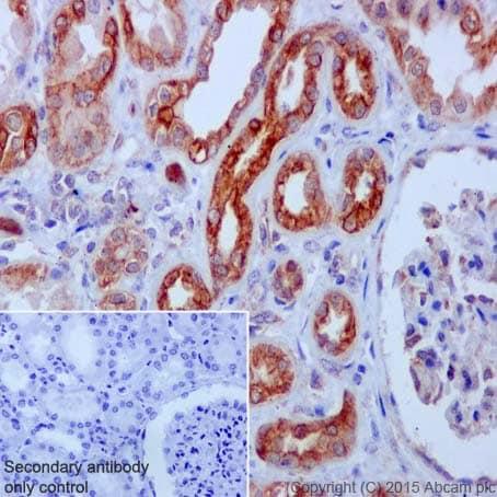 Immunohistochemistry (Formalin/PFA-fixed paraffin-embedded sections) - Anti-CSDE1/NRU antibody [EPR17414] - BSA and Azide free (ab236149)