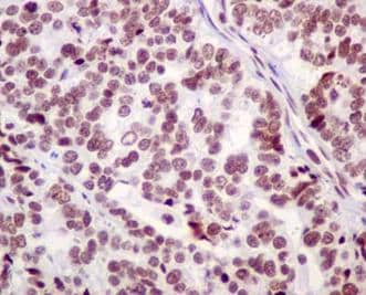 Immunohistochemistry (Formalin/PFA-fixed paraffin-embedded sections) - Anti-BTF antibody [EPR9980(2)] - BSA and Azide free (ab236159)