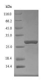 SDS-PAGE - Recombinant Mouse SOCS1 protein (Tagged) (ab236163)