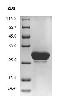 SDS-PAGE - Recombinant <em>E. coli </em> Metalloprotease LoiP protein (His tag) (ab236176)