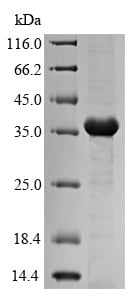 SDS-PAGE - Recombinant Fimbrial subunit type 3 protein (Tagged) (ab236181)