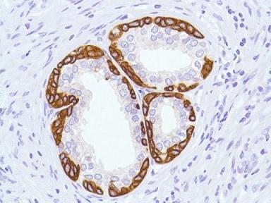Immunohistochemistry (Formalin/PFA-fixed paraffin-embedded sections) - Anti-Cytokeratin 5 antibody [SP27] - BSA and Azide free (ab236216)