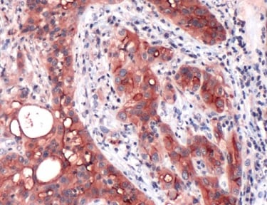 Immunohistochemistry (Formalin/PFA-fixed paraffin-embedded sections) - Anti-Mesothelin antibody [SP74] - BSA and Azide free (ab236217)