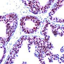 Immunohistochemistry (Formalin/PFA-fixed paraffin-embedded sections) - Anti-Progesterone Receptor antibody [SP42] - BSA and Azide free (ab236222)