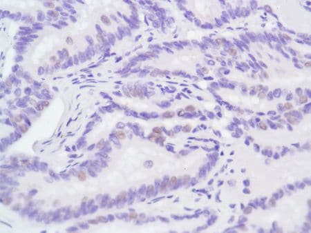 Immunohistochemistry (Formalin/PFA-fixed paraffin-embedded sections) - Anti-Androgen Receptor antibody [SP107] - BSA and Azide free (ab236225)