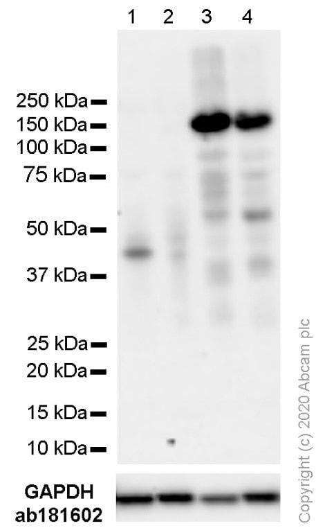 Western blot - Anti-Androgen Receptor antibody [SP107] - BSA and Azide free (ab236225)