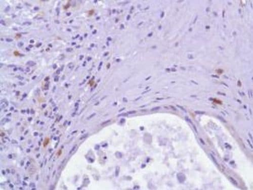 Immunohistochemistry (Formalin/PFA-fixed paraffin-embedded sections) - Anti-ICOS antibody [SP98] - BSA and Azide free (ab236226)