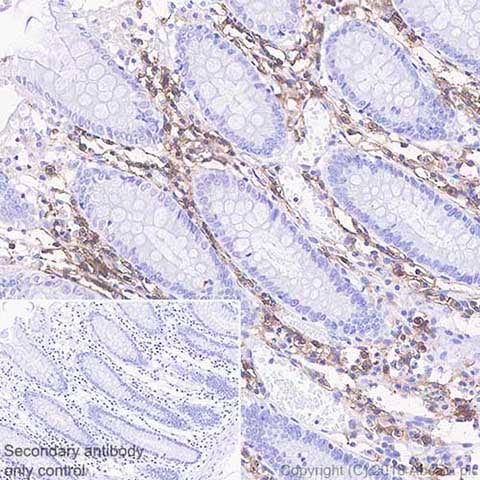 Immunohistochemistry (Formalin/PFA-fixed paraffin-embedded sections) - Anti-CD38 antibody [SP149] - BSA and Azide free (ab236232)