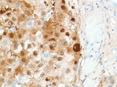 Immunohistochemistry (Formalin/PFA-fixed paraffin-embedded sections) - Anti-Liver Arginase antibody [SP156] - BSA and Azide free (ab236233)