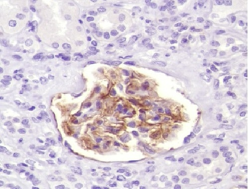Immunohistochemistry (Formalin/PFA-fixed paraffin-embedded sections) - Anti-CD35 antibody [SP191] - BSA and Azide free (ab236236)