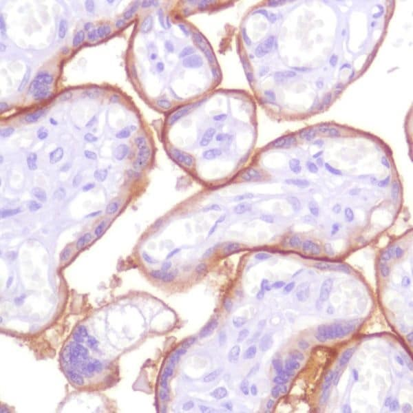 Immunohistochemistry (Formalin/PFA-fixed paraffin-embedded sections) - Anti-PD-L1 antibody [SP142] - BSA and Azide free (ab236238)