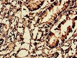 Immunohistochemistry (Formalin/PFA-fixed paraffin-embedded sections) - Anti-MTH1 antibody (ab236249)