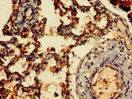 Immunohistochemistry (Formalin/PFA-fixed paraffin-embedded sections) - Anti-ARF1 antibody (ab236250)