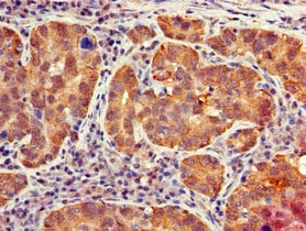 Immunohistochemistry (Formalin/PFA-fixed paraffin-embedded sections) - Anti-IFIT1 antibody (ab236256)