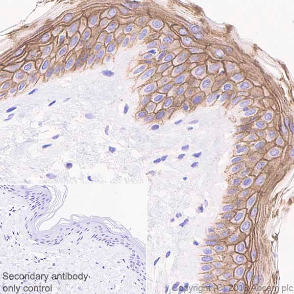Immunohistochemistry (Formalin/PFA-fixed paraffin-embedded sections) - Anti-Desmoglein 1/DSG1 antibody [EPR20382] - BSA and Azide free (ab236259)