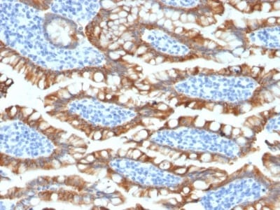 Immunohistochemistry (Formalin/PFA-fixed paraffin-embedded sections) - Anti-Cytokeratin 8 antibody [KRT8/2174R] - BSA and Azide free (ab236270)