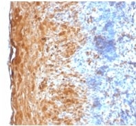 Immunohistochemistry (Formalin/PFA-fixed paraffin-embedded sections) - Anti-Involucrin antibody [IVRN/2113R] - BSA and Azide free (ab236273)