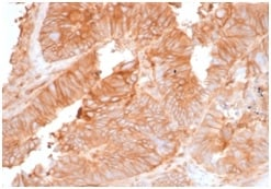 Immunohistochemistry (Formalin/PFA-fixed paraffin-embedded sections) - Anti-beta 2 Microglobulin antibody [rB2M/961] - BSA and Azide free (ab236274)