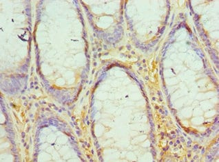 Immunohistochemistry (Formalin/PFA-fixed paraffin-embedded sections) - Anti-EED antibody (ab236292)