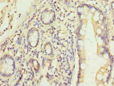 Immunohistochemistry (Formalin/PFA-fixed paraffin-embedded sections) - Anti-C17orf66 antibody (ab236293)