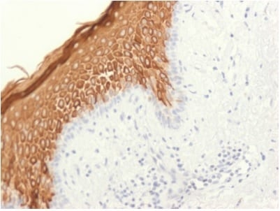 Immunohistochemistry (Formalin/PFA-fixed paraffin-embedded sections) - Anti-Cytokeratin 10 antibody [KRT10/1948R] - BSA and Azide free (ab236308)