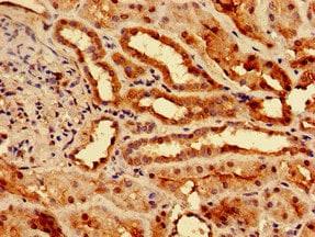 Immunohistochemistry (Formalin/PFA-fixed paraffin-embedded sections) - Anti-Slc25a1 antibody (ab236320)