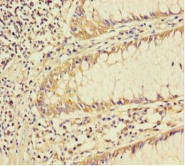 Immunohistochemistry (Formalin/PFA-fixed paraffin-embedded sections) - Anti-Smad4 antibody (ab236321)